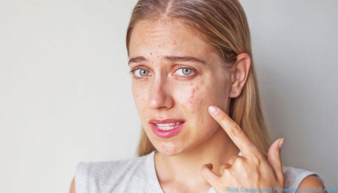 Pse paraqiten aknet tek gratë 10 vite pas adoleshencës?