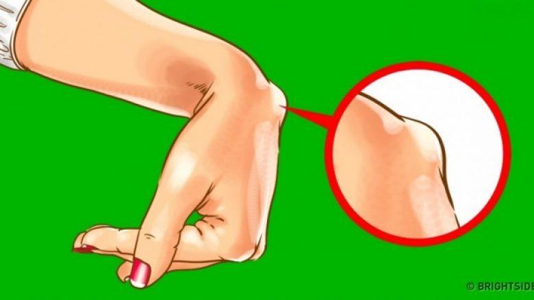 Pse duhet të brengoseni nëse ju shfaqet një gungë në dorë