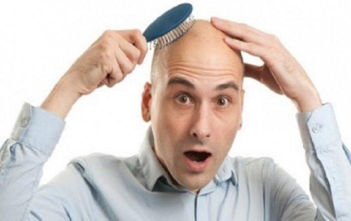 Lajm i mirë për tullacët, zbulohet kura kundër rënies së flokëve