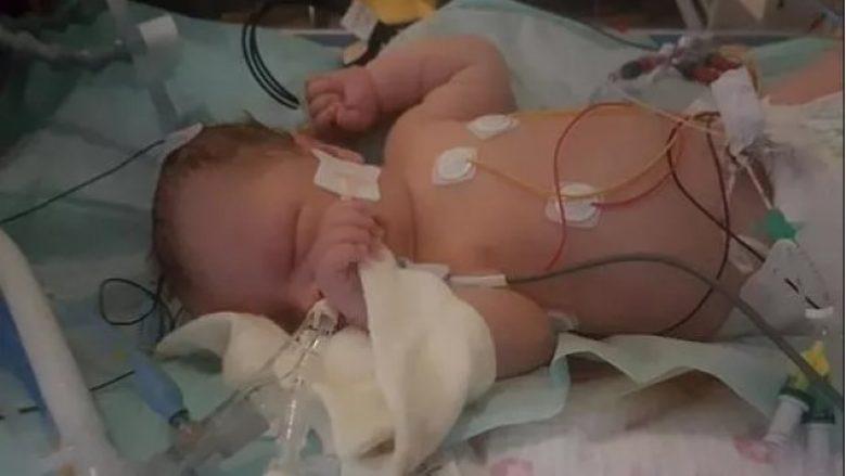 Nuk mori frymë për 28 minuta pas lindjes, mbijeton foshnja